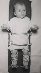 Polio, Baby, Bradford frame images